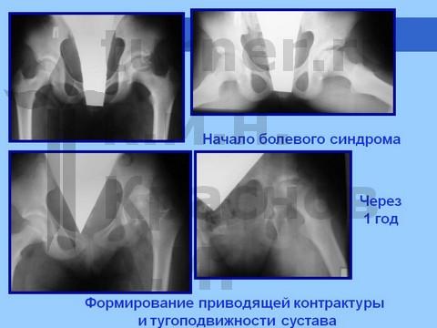 резкая боль в коленном суставе при сгибании