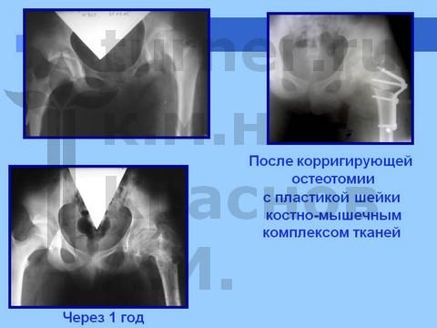 Синовит тазобедренного сустава турнера укол в коленный сустав дьюралан