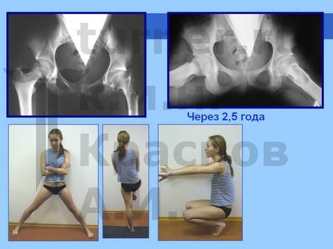 Дисплазии тазобедренного и локтевого суставов у детей снимки узи коленного сустава в вао