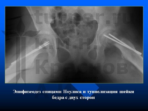 дисплазия правого тазобедренного сустава мкб