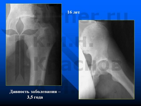 Синовит тазобедренного сустава турнер боли коленного сустава симптомы и лечение
