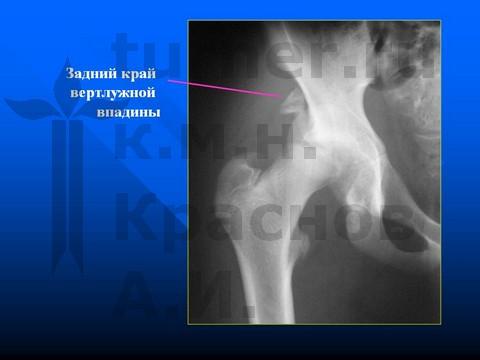 Дисплазия головки бедренной кости