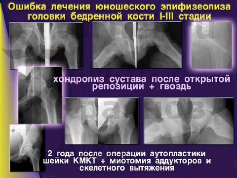 остаточная дисплазия тазобедренного сустава