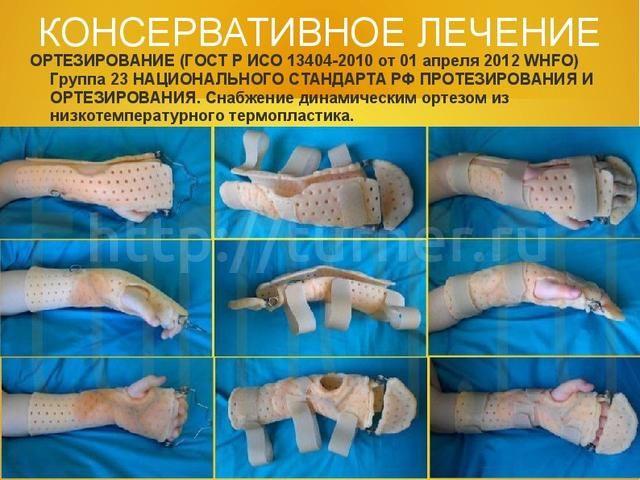 Сгибательная контрактура лучезапястного сустава коленный сустав лечение в ижевске платно