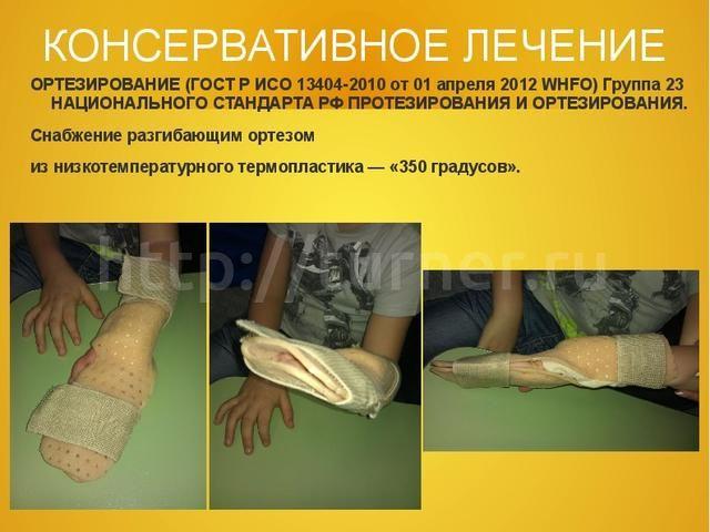 Невропатия фото
