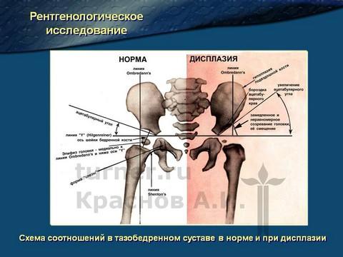 Ацетобулярные углы тазобедренных суставов туберкулез суставов реферат