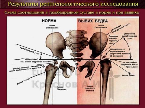 Дисплазия тазобедренных суставов у детей нормы растяжение связок голеностопного сустава время восстановления