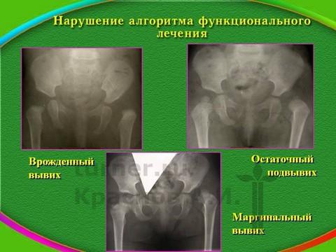 Институт турнера двухсторонний вывих тазобедренного сустава опухшие суставы что за заболевание и его лечение