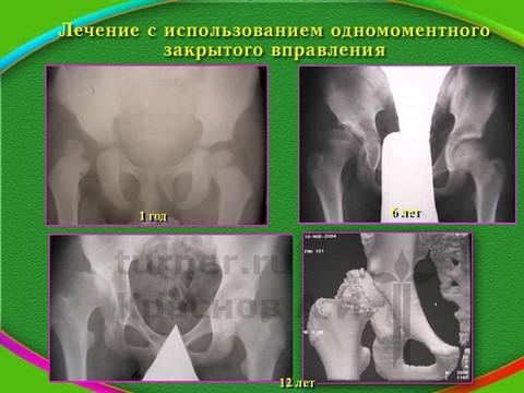 Операция вывих тазобедренного сустава упражнение для разхработки коленного сустава после операции