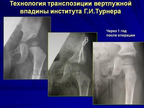 операции на тазобедренных суставах у детей