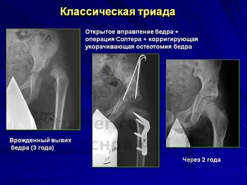 результаты операций на тазобедренных суставах