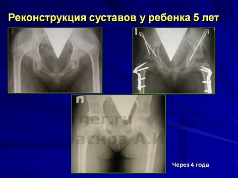 Лечение тазобедренный сустав новы технологии 132