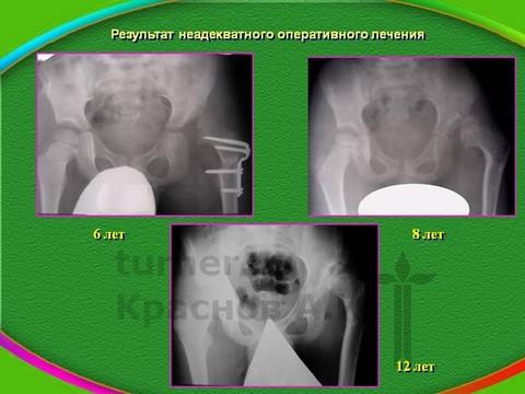 лечение дисплазии тазобедренного сустава у подростков