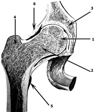 Воспаление бедренного сустава, лечение