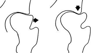 схема формирования подвывиха головки бедра в результате продолжающегося роста при отсутсвии лечения