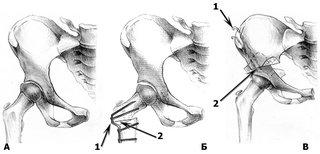 Анатомическое строение тазобедренного сустава у ребенка с болезнью Пертеса