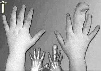 Суставной гигантизм стопы височно-челюстные суставы