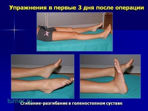 после операции по эндопротезированию тазобедренного сустава нога длинее