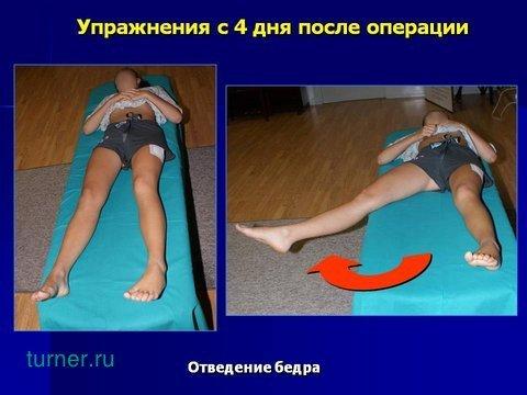 Что нельзя делать после эндопротезирования тазобедренного сустава
