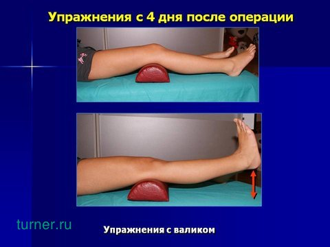 отек после эндопротезирования тазобедренного сустава